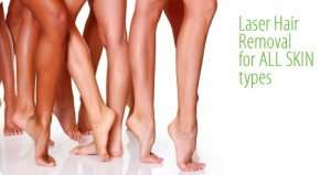 laser hair removal for all skin type