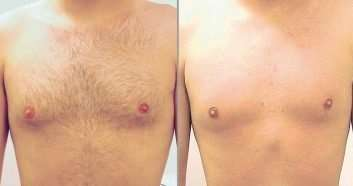 Tria 4x Hair Removal Laser Review Before And After Laserandy