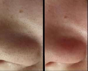 at home microdermabrasion machine results